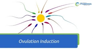 Ovulation Induction featured