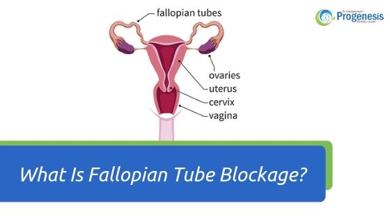 What Is Fallopian Tube Blockage_