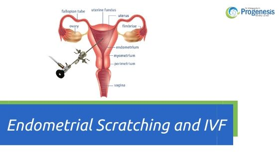 Endometrial Scratching and IVF